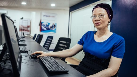 A woman with albinism is sat at a computer and looks at the camera.